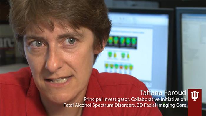 CIFASD – Collaborative Initiative on Fetal Alcohol Spectrum