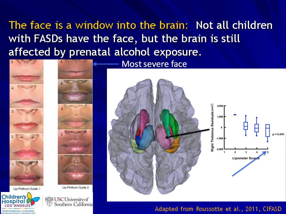 fetal alcohol syndrome research If fetal alcohol syndrome is suspected, your pediatrician may refer your child to a developmental pediatrician, a neurologist or another expert with special training in fetal alcohol syndrome for evaluation and to rule out other disorders with similar signs and symptoms.