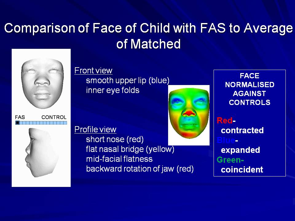 Fetal alcohol syndrome facial features pictures 3